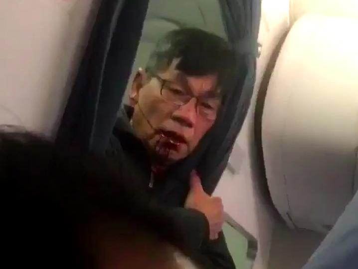 0411-united-flight-passenger-bloody-2